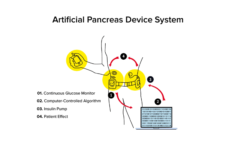 Artificial Pancreas Device System